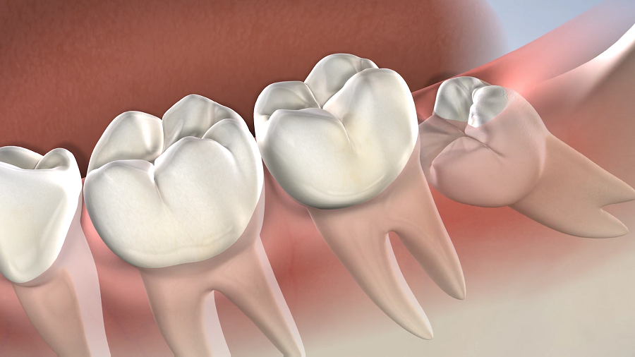 Shrewdness Teeth – How The Safe Extraction Procedure is Done